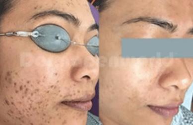 Før og efter Acne