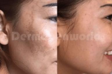 Før og efter 2